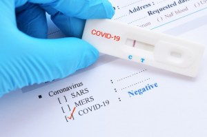 SARS-CoV-2 (Covid-19): Diagnosis by IgG/IgM  Rapid Test