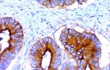 Anti-CEA CE/IVD for IHC - Gynecological pathology