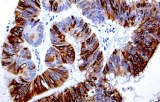 Anti-Cytokeratin 20 CE/IVD for IHC - Gynecological pathology